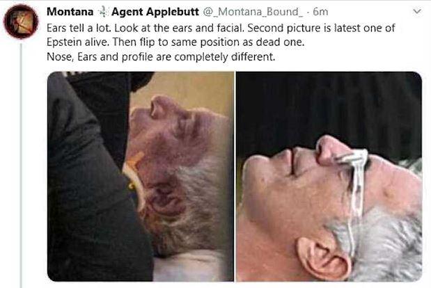 epstein ears 2.JPG