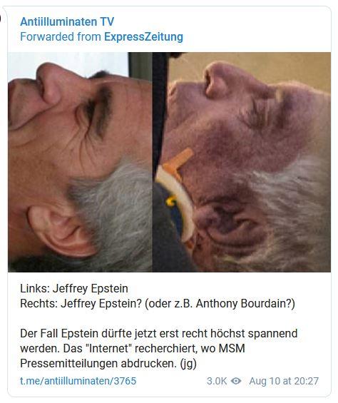 epstein ears